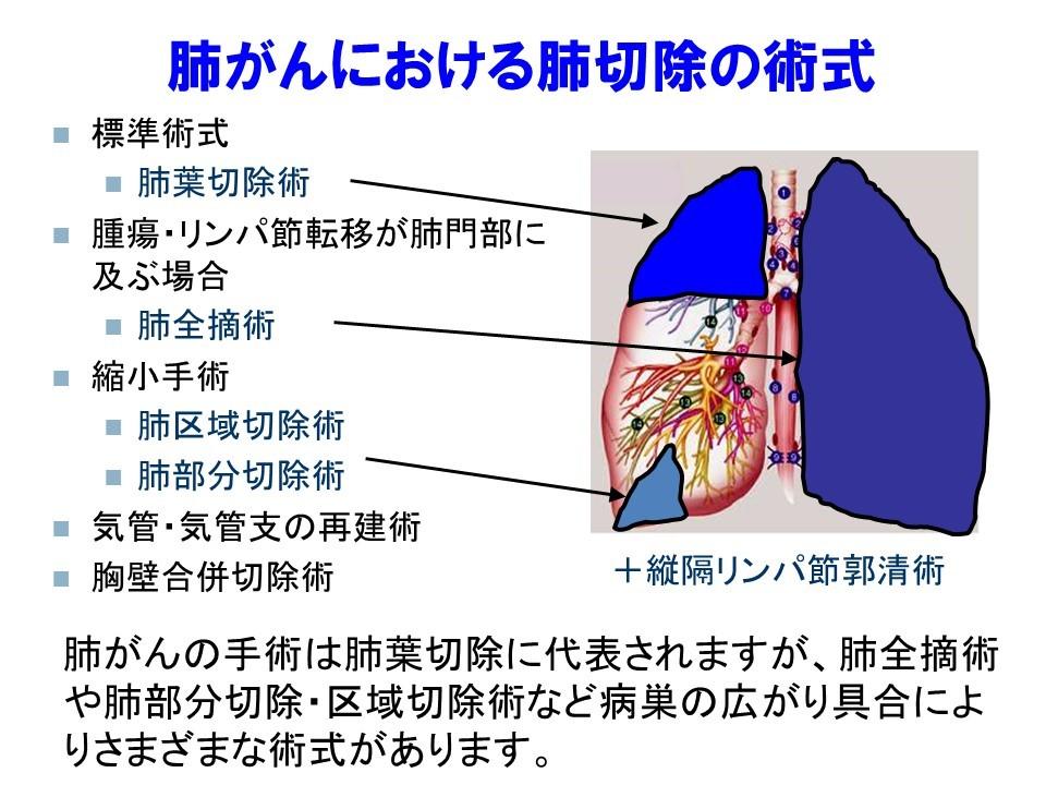 看護 胸膜 癒着 術